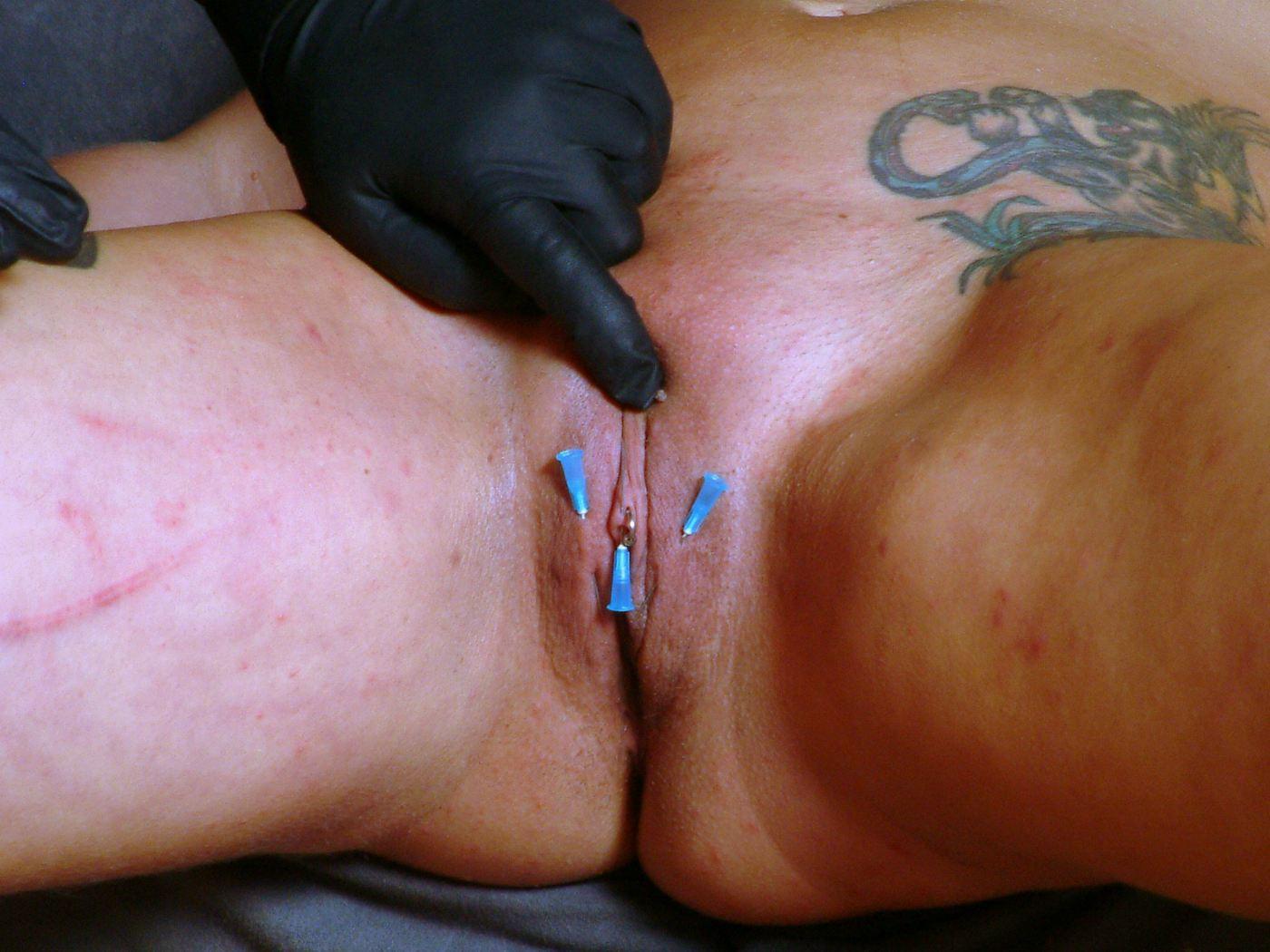 Needle pain clitoris